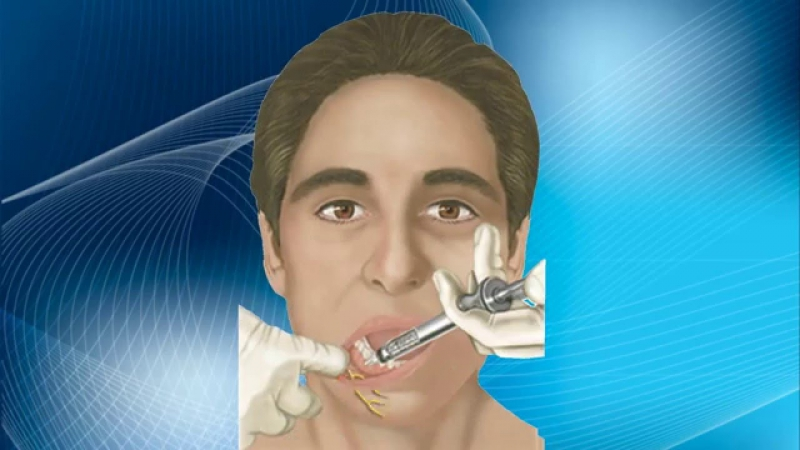 Анестезия подбородочного нерва