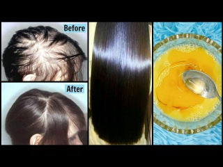 Powerful Remedy to Get Super Strong Hair | Stop Hair Fall in 1 Week | 100% EFFECTIVE