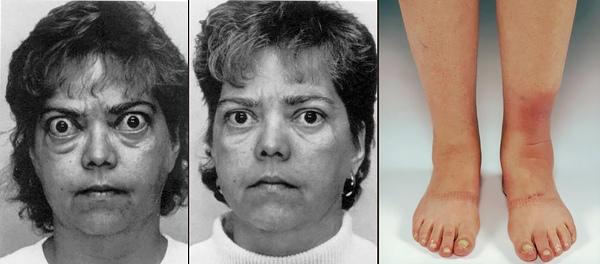 Филлеры и биоревитализация при обострениях болезней щитовидной железы, изображение №4