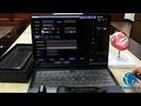 Windows How to manage patient information on Youkey SonoiQ software
