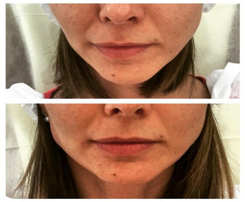 Выраженная маскулинизация лица, создание квадратной формы