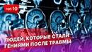 ТОП 10 людей, которые стали гениями из за травмы мозга