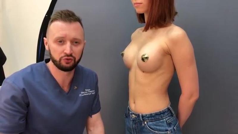 Обзор результатов увеличения груди через год после операции Пластический хирург Вашин М П Клиника Эпиона Медикус